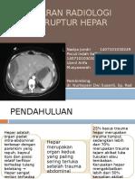 PPT Gambaran Radiologi Pada Ruptur Hepar Fixed