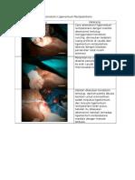 Laporan Desmotomi Ligamentum Rectipatellaris