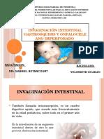 Invaginación Intestinal (2)