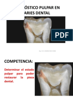 Diagnóstico Pulpar en Caries Dental