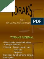 KULIAH THORAX.ppt