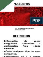 7. Vasculitis