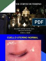 Cáncer Cervicouterino URUAPAN II