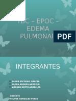 DIAPOSITIVAS EPOC