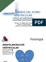 taquicardias_ventriculares