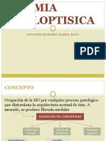 Anemia Mieloptisica