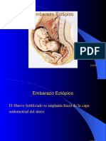 embarazo-ectpico-acti-1202447131851193-2