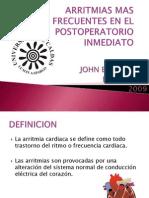 ARRITMIAS EN EL POSOPERATORIO INMEDIATO