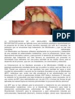 Osteonecrosis de Los Maxilares Asociado a Bifosfonatos
