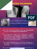 7. Hidatidosis Pulmonar Final