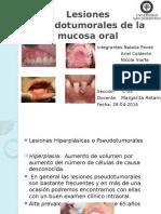 Lesiones Seudotumorales de La Mucosa Oral