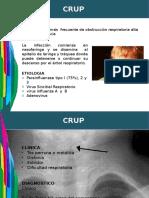 Crup, Epiglotitis y Traqueitis Bacteriana Completo