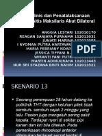 Skenario 13