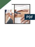 O Que é Diabetes, O Que Causa Diabetes, O Que Diabetes, O Que é Diabetes Mellitus, Cid Diabetes.pdf
