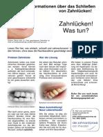 Zahnlücken, Wie Versorgen Zahnarztpraxis Am Theater