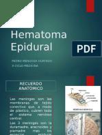 8. Hematoma Epidural