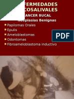 2Boca-Estmago