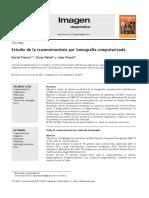 Estudio de La Craneosinostosis Por Tomografía Computarizada