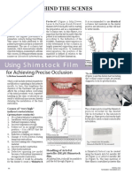 """Using Shimstock Film for achieving precise occlusion"""