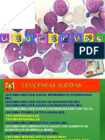 LEUCEMIAS