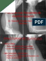 79532286-Fracturas-Mas-Frecuentes-de-Miembro-Superior.pptx