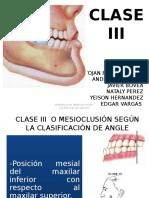 APARATOLOGIA CLASE III expo ortopedia.pptx