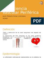 Insuficiencia Vascular Periférica