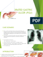 Perforated Gastric Ulcer (Pgu)