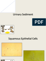 Sedimen Urin