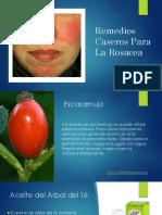 Remedios Caseros Para La Rosacea