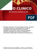 Caso Clinico Necrosis Avascular