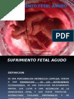 Sufrimiento Fetal Agudo Intraparto
