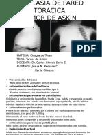 Neoplasia de Pared Toracica