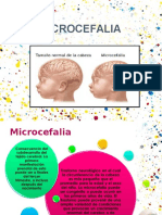 ppt microencefalia