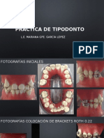 PRÁCTICA DE TIPODONTO.pptx