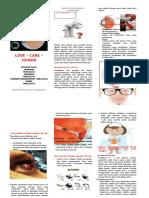 Leaflet Ablasio Retina