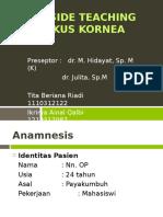 BST Mata Ulkus Kornea Baru.pps