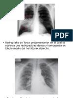 radiografias.pptx