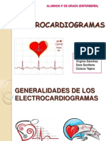 electrocardiograma-130115034018-phpapp01