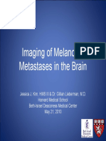 Imaging of Brain Metastases From Melanoma