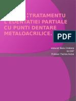 PDentare-Metalo-Acrilice