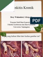 Bronkitis Kronis