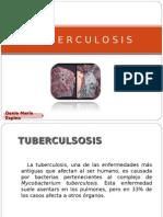 Ya Tuberculosis
