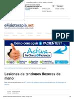Lesiones de Tendones Flexores de Mano - Artículo de Fisioterapia