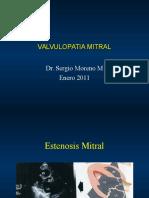 19 Valvulopatia Mitral