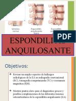 espondilitis anquilosante imagenología