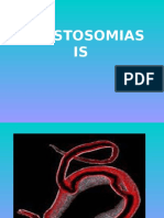 Esquistosomiasis