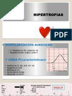 ELECTROCARDIOGRAMA HIPERTROFIAS