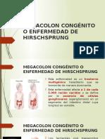 Megacolon Congénito o Enfermedad de Hirschsprung