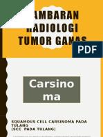 Gambaran Radiologi Tumor Ganas